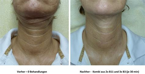 +3: Radiofrequenz - MBC Medical Beauty Competence Center